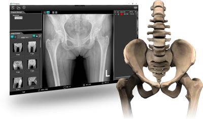 Osteoporosis AI Screening Assistant